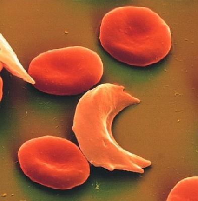 anemia_falciforme